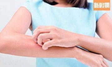 預防濕疹8大食療!補品竟有反效果?中醫教你飲食忌宜+注意事項|食是食非