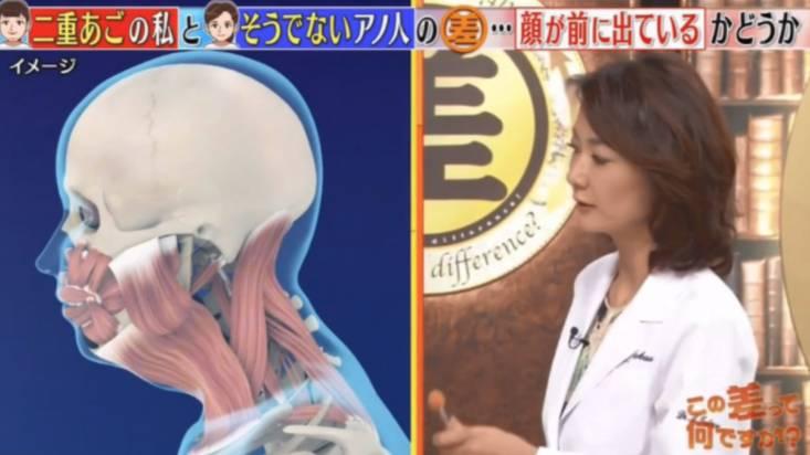 中瀨院長表示,長期使用手提電話及電腦等電子器材,身體習慣性低頭向前傾,導致部分臉部肌肉鬆弛,增加雙下巴出現的情況。