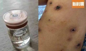 亂試減肥免費療程!內地兩女注射蛋白液 皮膚滲血流膿 捱過百刀傷口不能癒合 網絡熱話