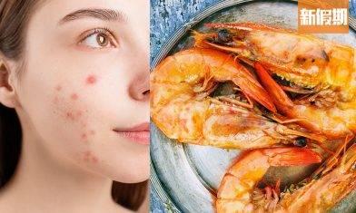 牛奶敷臉可治暗瘡?中醫分析不同位置暗瘡成因+飲食宜忌+改善茶療 食是食非(新假期APP限定)