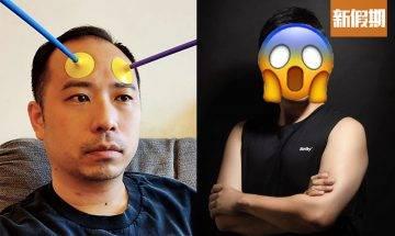 39歲司徒夾帶回春有術「髮再生」 網友笑爆:你個頭落咗化肥