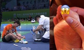 李寧牌球鞋出事!中國奧運冠軍陳雨菲全運會被球鞋刮傷腳趾裂開 網民:李寧請放過運動員!|網絡熱話