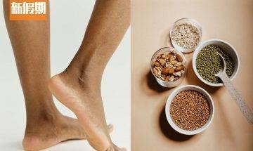 汗皰疹人人都可能有 一文拆解汗皰疹成因症狀+教你3招預防方法+4種食物 養出好體質|食是食非